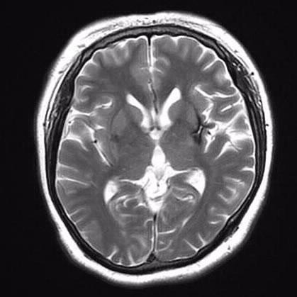 MRI撮影装置